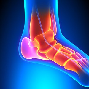 There are many conditions that can cause heel pain.