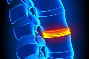 Spine Health in Older Adults