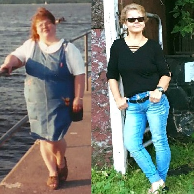 A few years ago, Tammy weighed more than 250 pounds and had an arthritis flare-up that caused her to miss a lot of work. She thought she would have to go on permanent disability. Through her own hard work and with a plan from CentraCare Weight Management, she has lost over 100 pounds and is mulling a future with many possibilities.