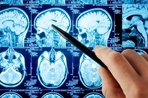 Brain tumors and vascular lesions