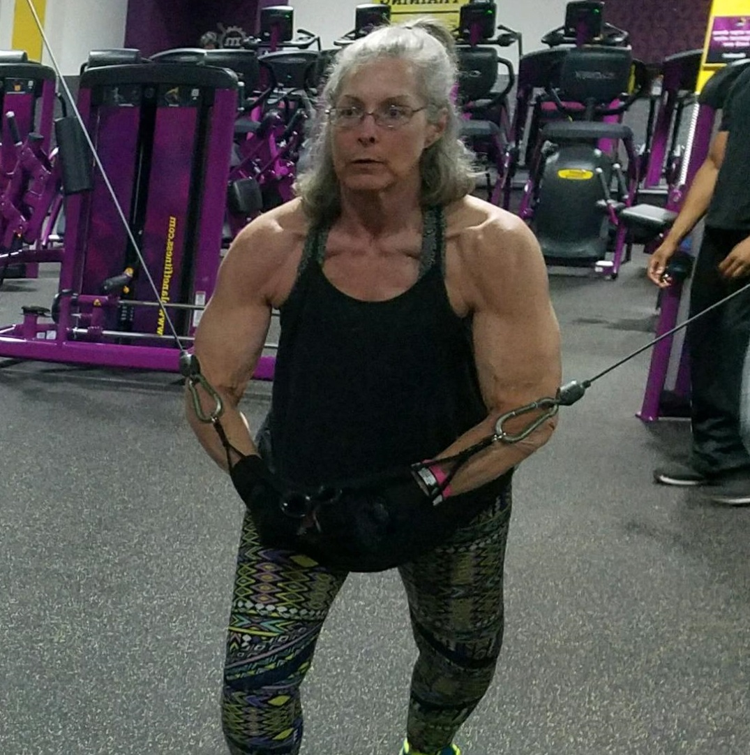 With the CentraCare Weight Management Program, Robin lost more than 35 pounds in six months. Along with surgery for an adjustable lap band, her weight now hovers in the mid-170. Robin is now an active bodybuilder and works as a personal trainer.