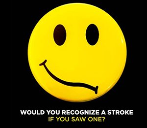 Would You Recognize a Stroke If You Saw One?