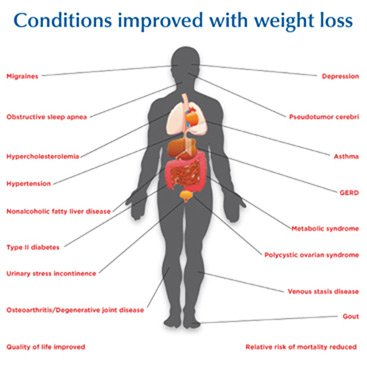 Conditions improved with weight loss